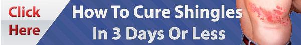 cure shingles natural remedy